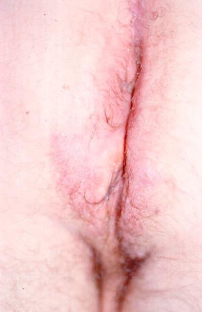 炎性消化道疾病的皮肤表现